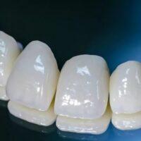 металлокерамические коронки на передние зубы