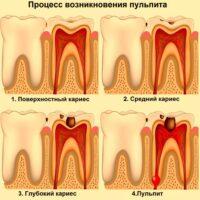 лечение пульпита 3 канального зуба